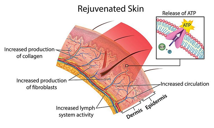 Illustration showing how red light therapy heals rosacea prone skin.