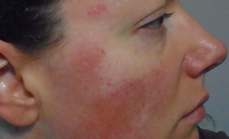 Discover red light therapy for rosacea treatment.